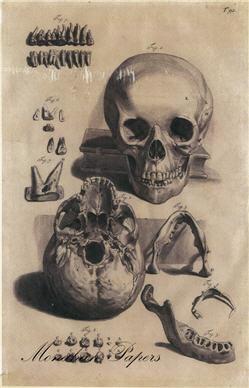 Skeletal Fiqure - SPS416