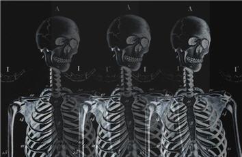 Skeleton Trio - SPS609i